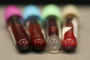 Blood-Tubes