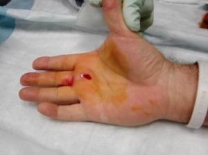 Post- Percutaneous Treatment  (1)
