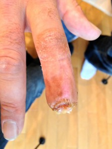 AFTER-Fingertip Trauma