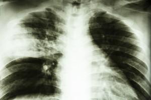 Tuberculosis-740